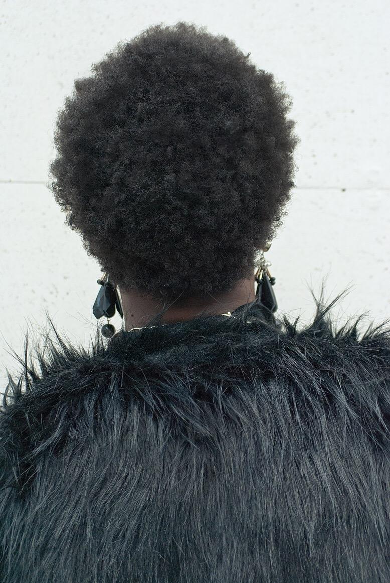 grow back hairline